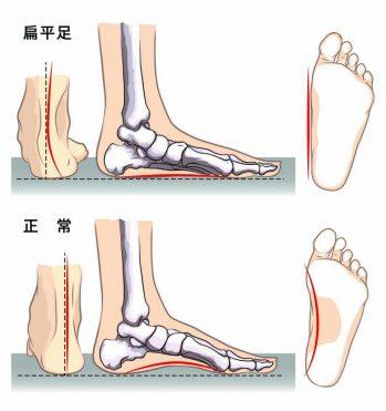 flatfoot-964x1024